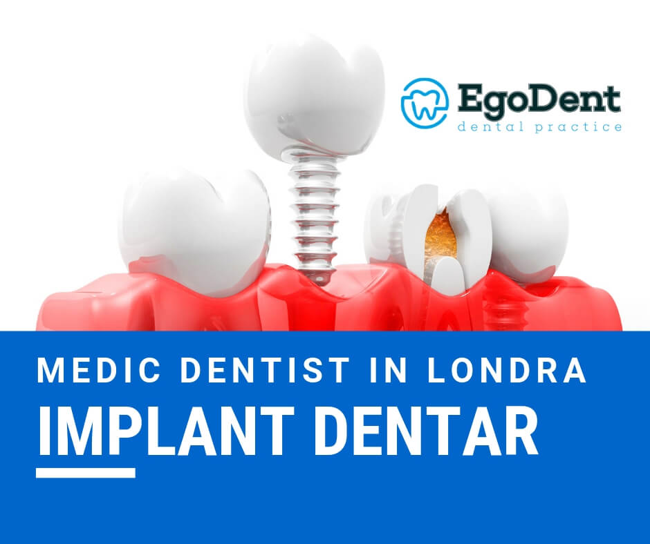 Medic Dentist in Londra